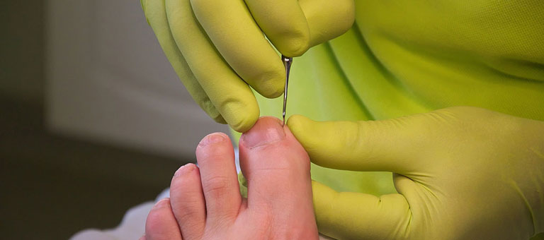 Chiropody in Clapham