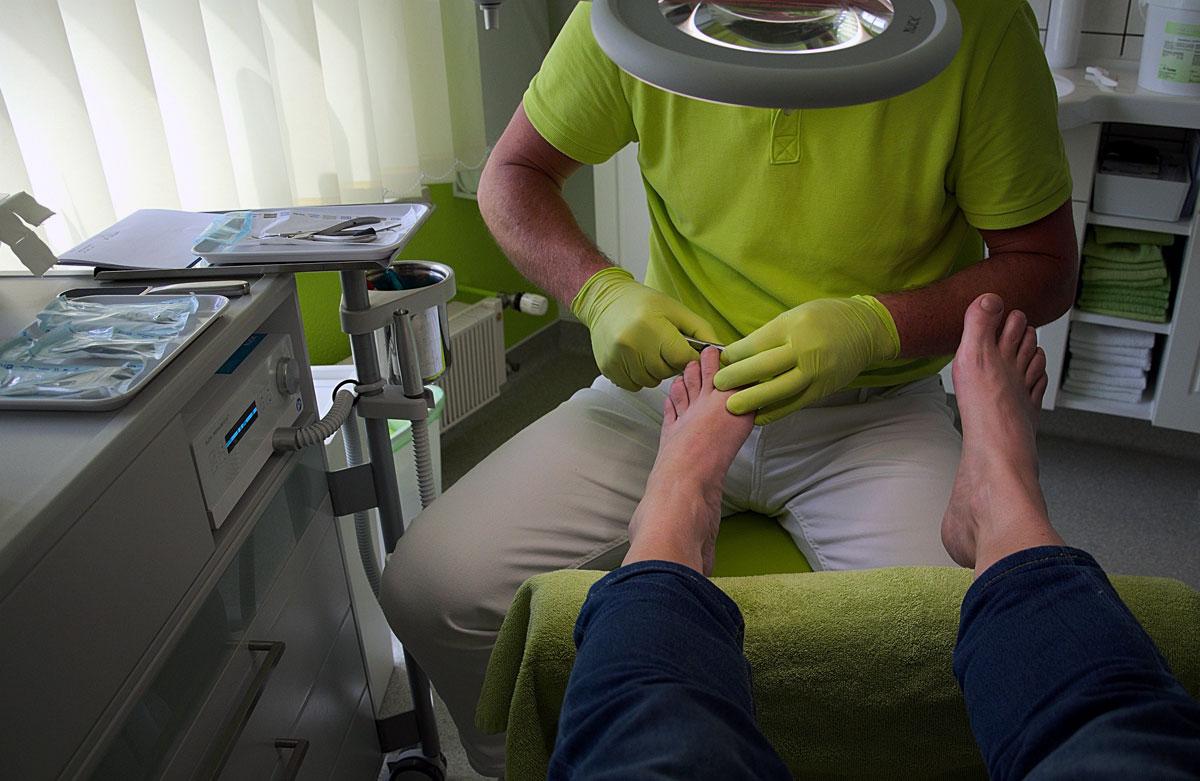 Nail Surgery
